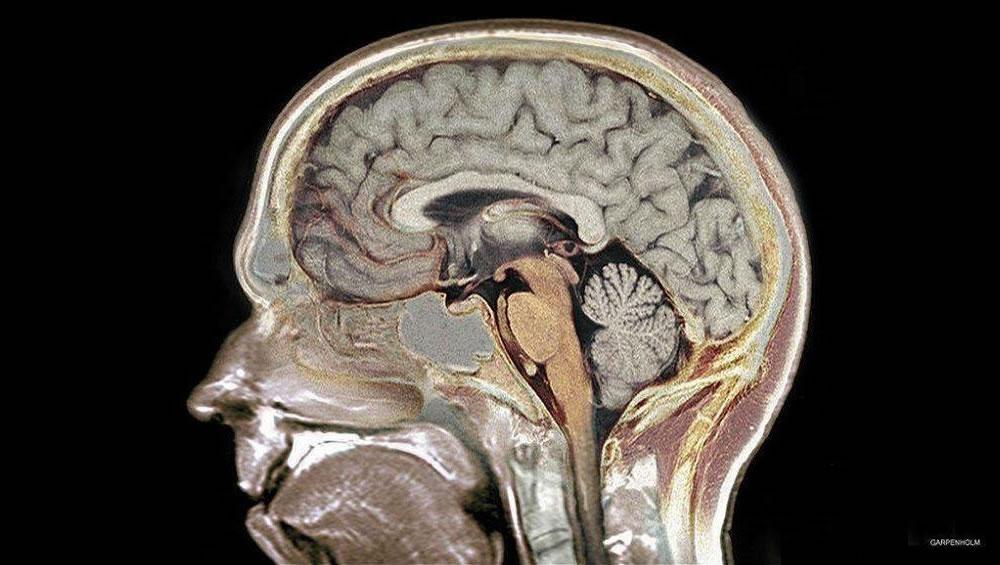Uma região escondida no cérebro humano foi descoberta 1