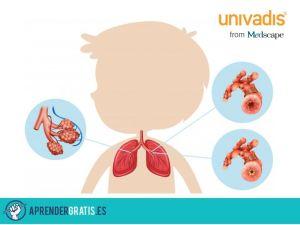 Aprender Gratis   Curso sobre rehabilitación respiratoria
