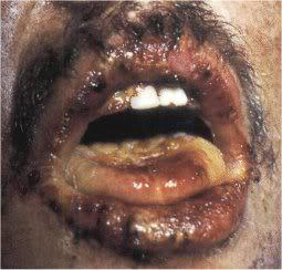The mouth of a man who has suffered a 10 to 20 Gy dose 21 days after the exposure, note that damage to normal skin, the lips and the tongue can be seen