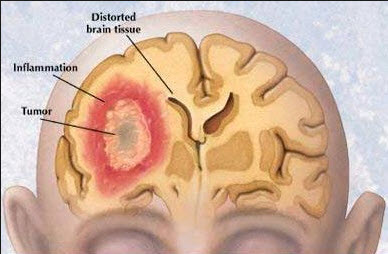 Kenal Dengan Kanker Otak dan Tumor Otak itu Bagus!