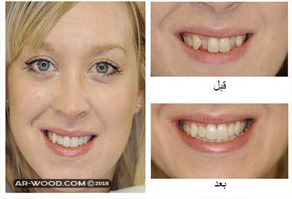 بروز الاسنان قبل وبعد 1