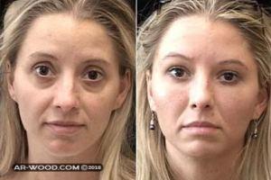 حقن الدهون فى الوجه قبل وبعد