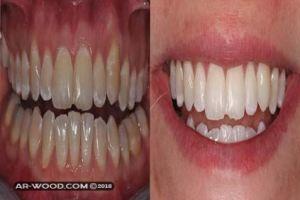 علاج التهاب اللثه بعد تلبيس الاسنان