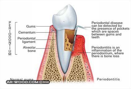 علاج التهاب عصب الاسنان بالأعشاب