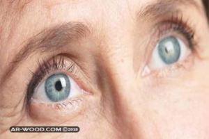 علاج الماء الابيض في العين