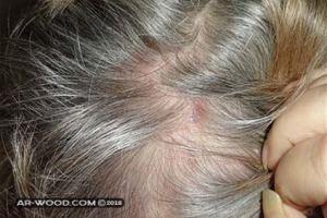 حبوب في الراس تسبب تساقط الشعر