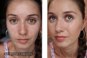 وصفة لازالة الحبوب من الوجه في يوم واحد