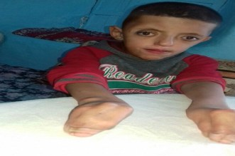 مأساة طفل ولد بأصابع ملتصقة