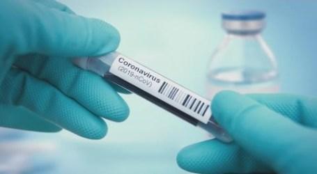 اختبارات كوفيد-19 المجانية والمنتظمة للعاملين في مجال الرعاية الصحية
