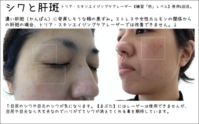 アラフォー自分の目尻のシワと頬にある肝斑のような色素沈着