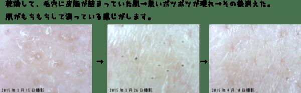 トリアスキンエイジングケアレーザーの肌経過(頬)
