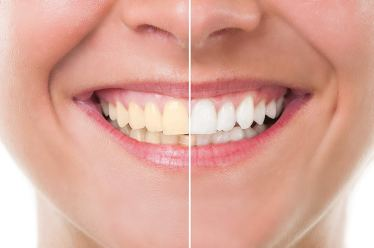 Teeth Whitening BLEACHIG - Istanbul