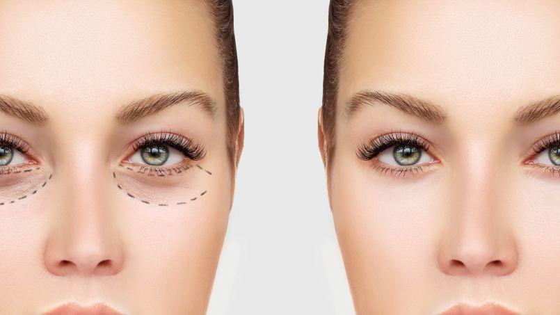 Eye Bag Surgery, Istanbul, Turkey