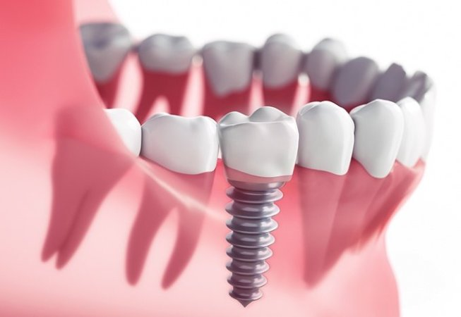 Dental Implants Istanbul Arabist Group