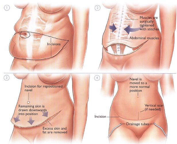 tummy procedure