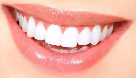 whitening teeth Istanbul