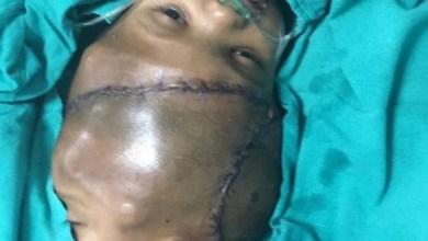 Photo of جراحة تفصل توأمين ملتصقين من الرأس