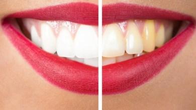 Photo of ما هي أكثر العلاجات المنزلية فعالية لتبييض الأسنان؟
