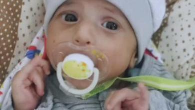 """Photo of كيف قتلت """"أشعة"""" طفلا بمستشفى في الطائف؟ والصحة توضح"""