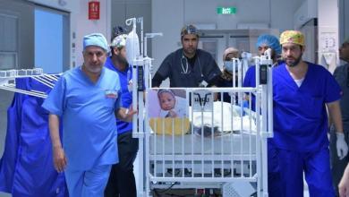 Photo of فصل التوأم التنزاني في عملية استغرقت 13 ساعة بالرياض