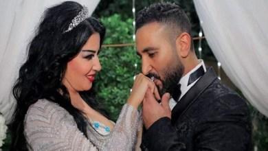 Photo of سمية الخشاب: أحمد سعد تسبب لي بعاهة مستديمة في جسمي!