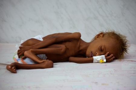طفل يمني يعاني من سوء التغذية في وحدة للعناية المركزة في مدينة الحديدة يوم 11 سبتمبر ايلول 2016. تصوير: عبد الجبار زياد - رويترز.