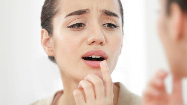 5 مكونات لعلاج قرحة الفم بسرعة