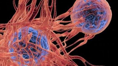 Photo of العلماء يدحضون أوهامًا شائعة عن السرطان