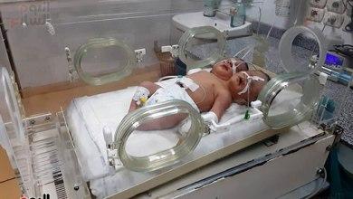 Photo of أول ولادة نادرة لطفلة برأسين في أوكرانيا