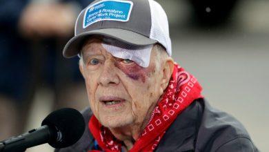 Photo of جيمي كارتر يخضع لعملية جراحية في الدماغ إثر تعرضه لنزيف