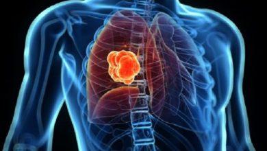 Photo of تراجع عدد المصابين بسرطان الرئة في الولايات المتحدة