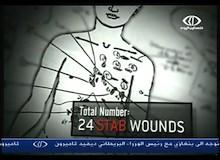 تحقيقات طبية : الحلقة السادسة