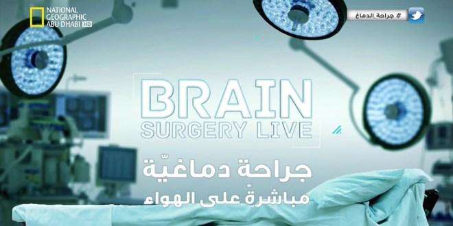 وثائقي جراحة الدماغ مباشرة على الهواء