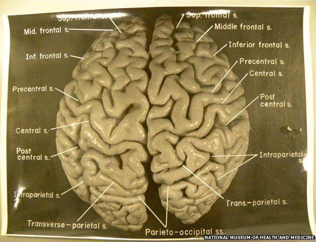 كان تركيب دماغه غير طبيعي