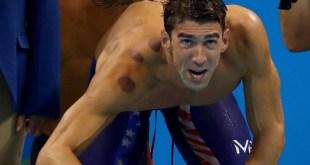 مقال - ماهي هذه الدوائر الحمراء على ظهورعدد الكبير من الرياضيين في الأولمبياد ؟