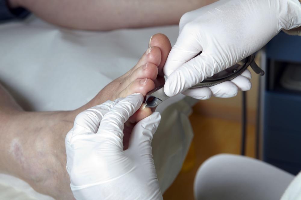 مقال - 7 أمراض خطيرة تعرفها من شكل الأظافر