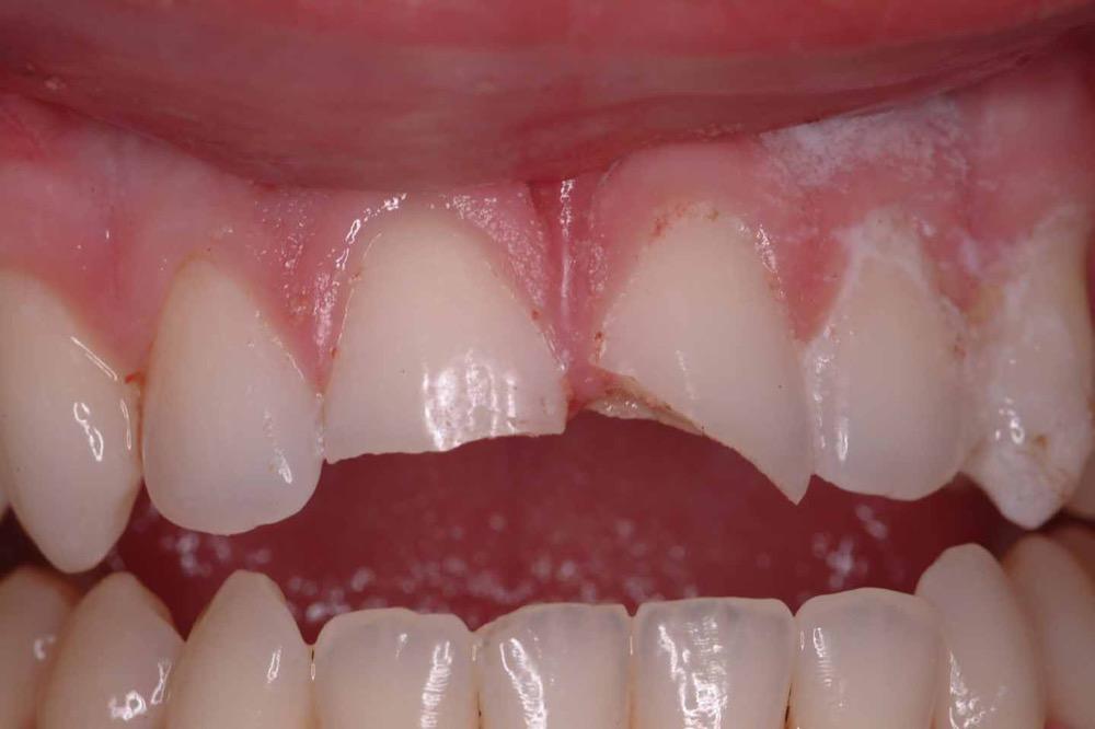 مقال - كيف تتصرف إذا سقط أو انكسر أحد أسنانك؟