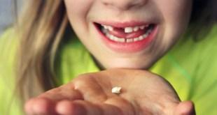 مقال – لماذا يجب الاحتفاظ بأسنان  طفلك اللبنية بعد سقوطها؟