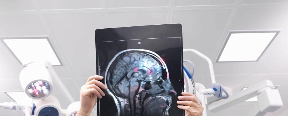 مقال – كيف تحافظ على دماغك شابا؟