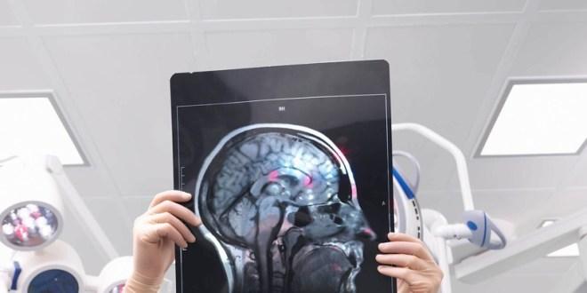 مقال - كيف تحافظ على دماغك شابا؟