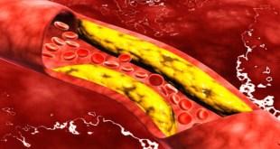 مقال - 4 أغذية لخفض الكوليسترول من دون دواء