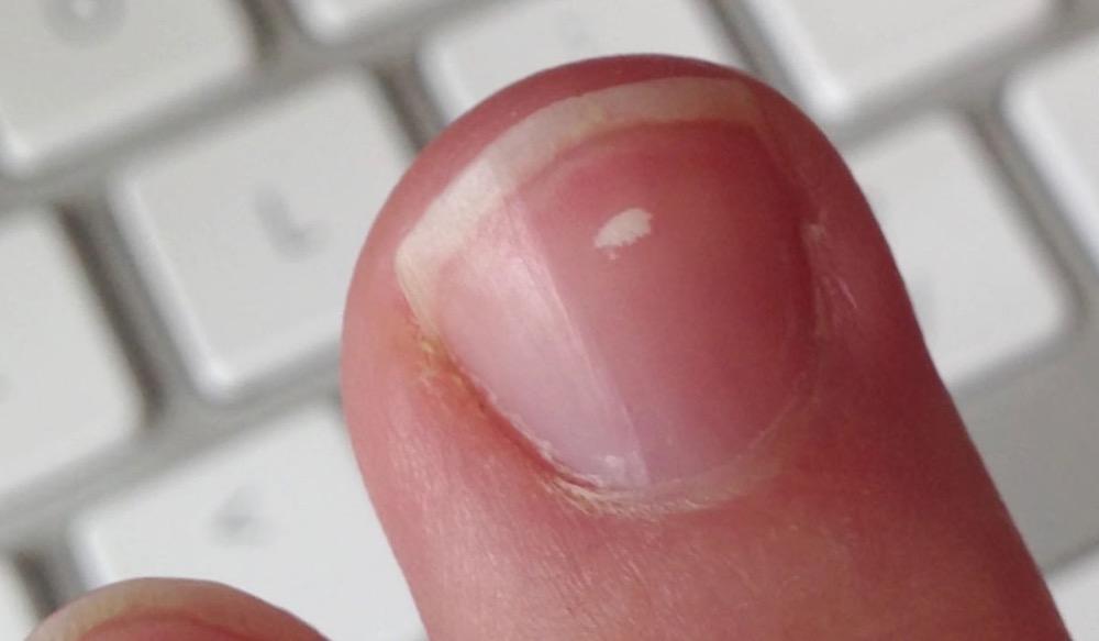 مقال - ما هي أسباب البقع البيضاء على الأظافر وطريقة علاجها؟