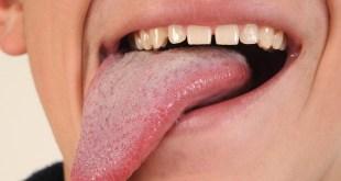 مقال – لماذا تُشفى جروح الفم بسرعة فائقة؟