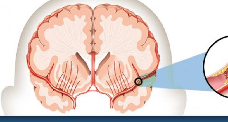 مقال - لماذا يصاب الشباب بالسكتة الدماغية؟