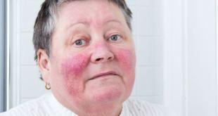 مقال - ماهي أسباب احمرار الوجه المستمر؟