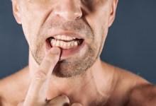 صورة مقال – 5 طرق للحفاظ على أسنانك مع تقدم العمر