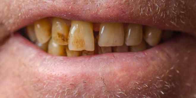 """مقال – كيف تحمي أسنانك من """"لون القهوة""""؟"""