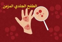 صورة مقال – الطفح الجلدي المزمن: أعراضه وكيفية علاجه