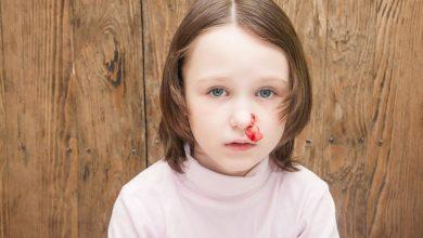 نزيف الأنف لدى الأطفال .. أسبابه و كيفية مواجهته