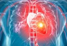 صورة مقال – 5 نصائح للأشخاص الذين يعانون من قصور القلب